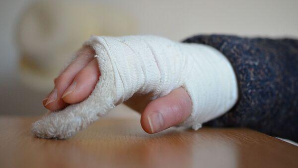 Рука в гипсе - Sputnik Таджикистан