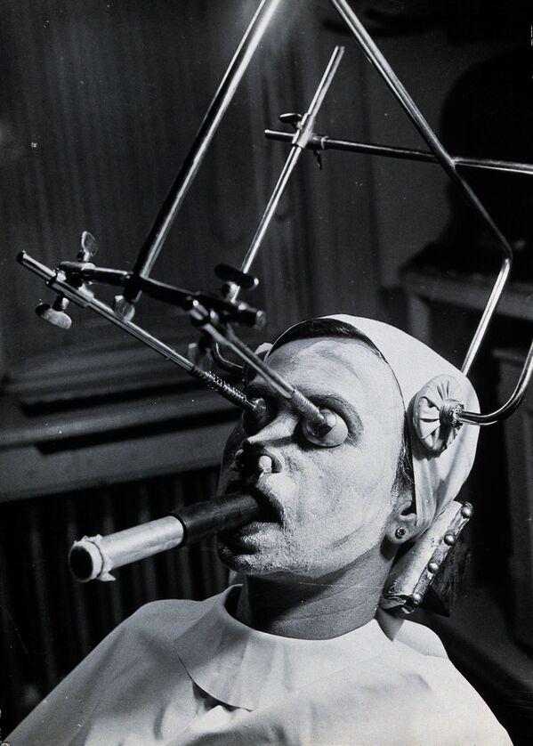 Металлическая конструкция используется при проведении пилинга для удаления веснушек, в рот на время процедуры вставляется специальная дыхательная трубка. Венгрия. - Sputnik Таджикистан