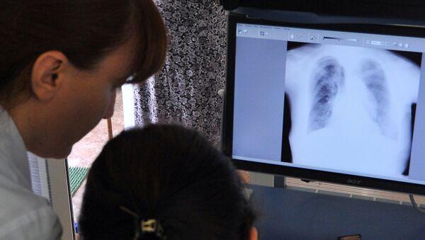Рентген легких. Архивное фото - Sputnik Таджикистан