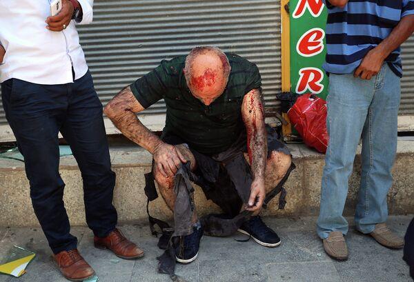 Раненый мужчина ждет медицинскую помощь после теракта в городе Суруч. - Sputnik Таджикистан