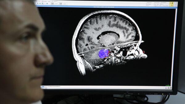 Изображение головного мозга. Архивное фото - Sputnik Таджикистан