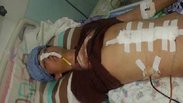 Студент Жасурбек Ибрагимов после очередной операции - Sputnik Тоҷикистон