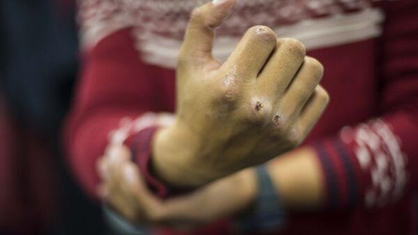 Мужчина показывает разбитый кулак, архивное фото - Sputnik Таджикистан
