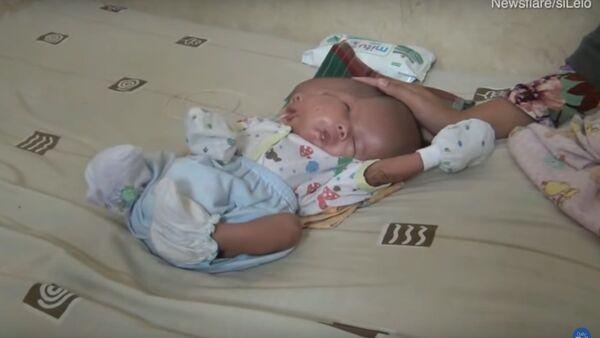 В Индонезии родился ребенок с двумя лицами - Sputnik Тоҷикистон