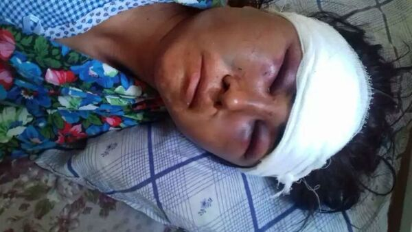 Женщина из Узбекистана, пострадавшая от побоев супруга - Sputnik Таджикистан